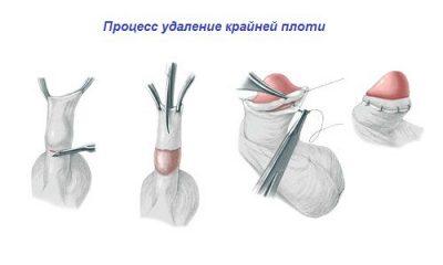 Изображение 3